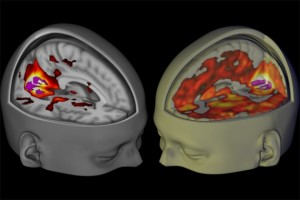 Under the influence of LSD, the brain's visual cortex has increased connectivity with other brain regions (right) than when imaged under placebo (left).